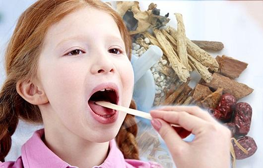 Chữa viêm amidan cho trẻ bằng đông y
