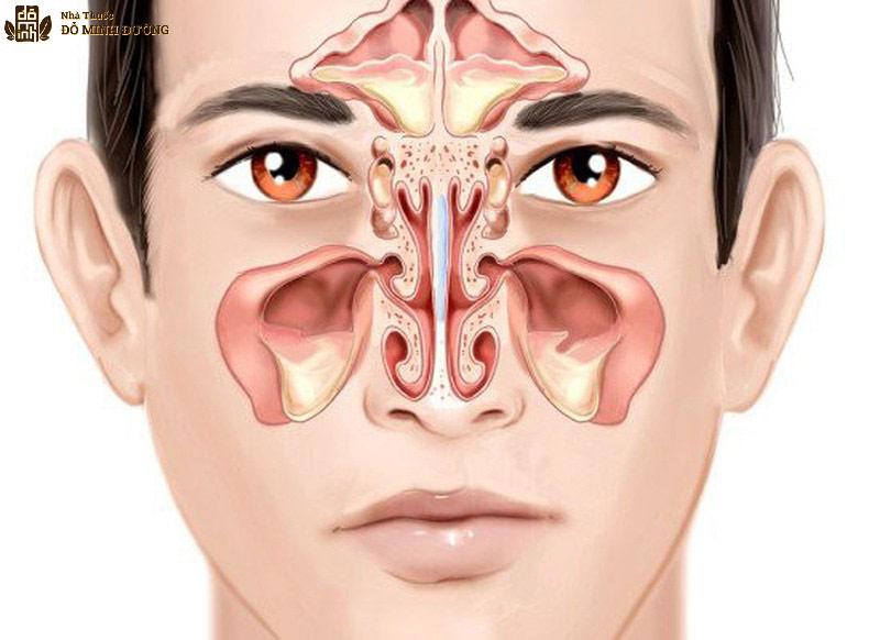 Phác đồ điều trị viêm xoang dựa vào tình trạng bệnh