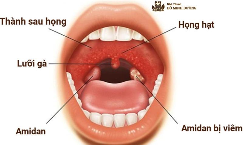 Viêm amidan cấp là bệnh lý thường gặp