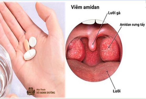 Viêm amidan uống thuốc gì