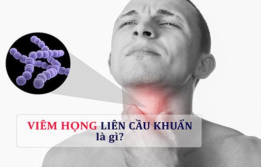 Viêm họng liên cầu khuẩn