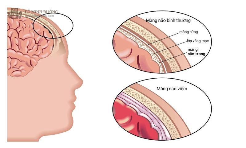 Viêm xoang có thể gây viêm não