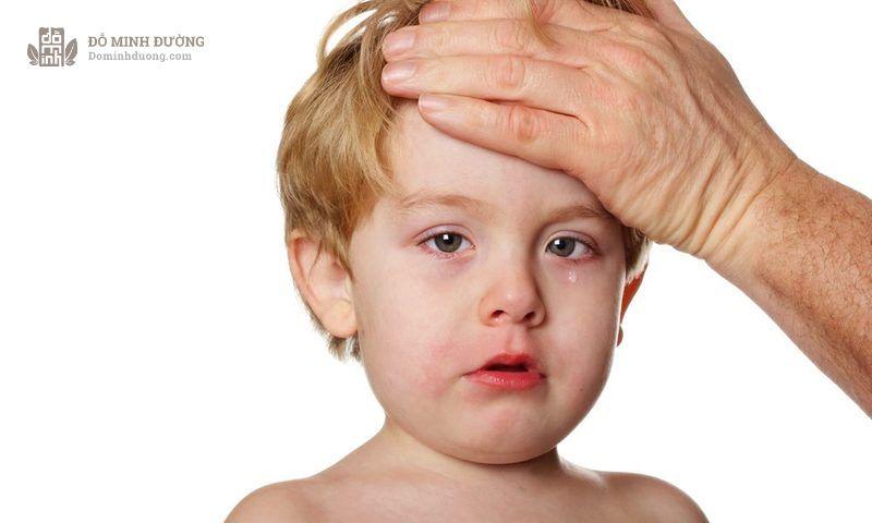 Viêm xoang gây ra nhiều triệu chứng khó chịu khiến trẻ quấy khóc