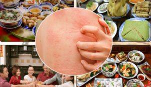 Người bị mề đay cẩn trọng với những món ăn ngày tết