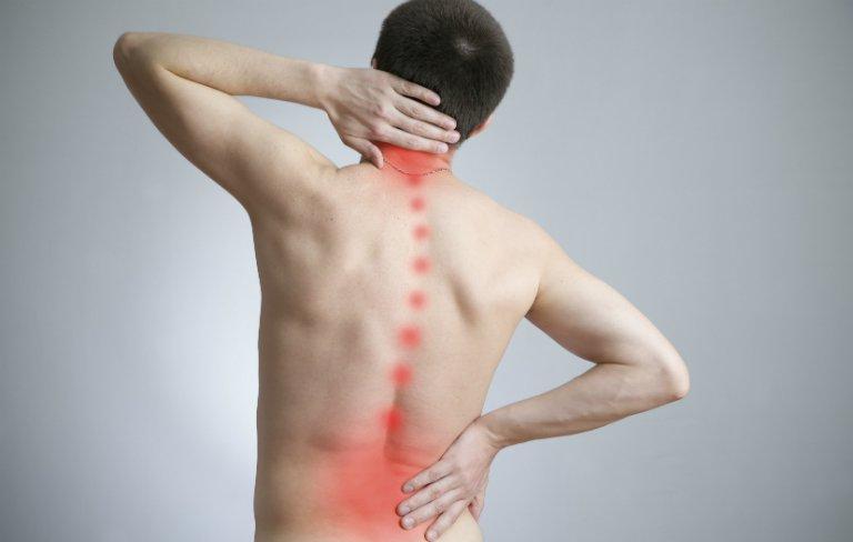 Dấu hiệu bị gai cột sốngđiển hình ở những cơn đau nhức