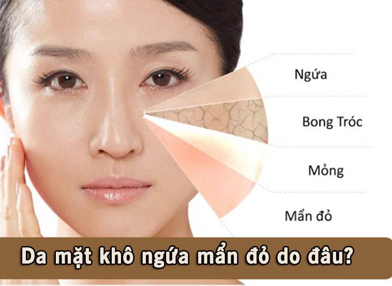 Có rất nhiều nguyên nhân gây ra tình trạng da mặt khô ngứa mẩn đỏ