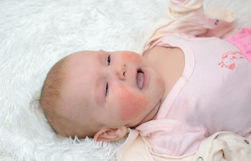 Trẻ sơ sinh bị mẩn ngứa là nỗi lo lắng của nhiều bậc phụ huynh
