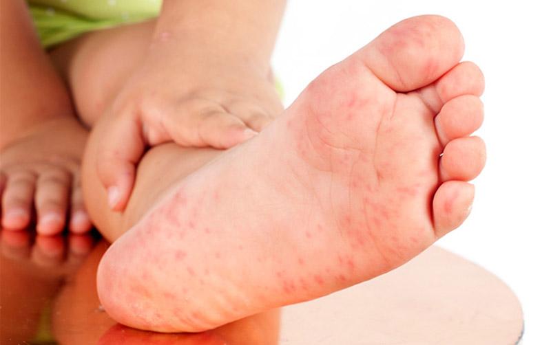 Chàm tổ địa có thể gây ra tình trạng nổi mẩn đỏ ngứa ở chân