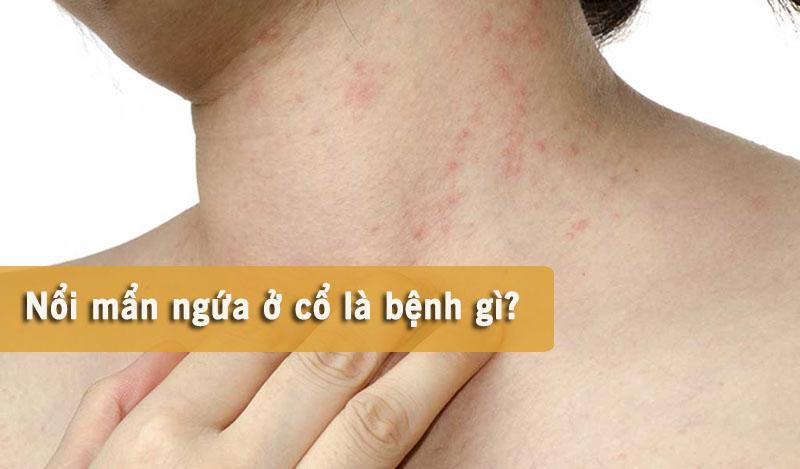 Nổi mẩn ngứa ở cổ là dấu hiệu của rất nhiều bệnh lý