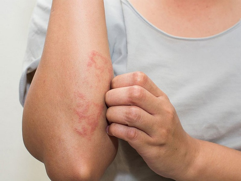 Viêm da tiếp xúc làm nổi nốt ban đỏ nhưng không làm xuất hiện triệu chứng sốt