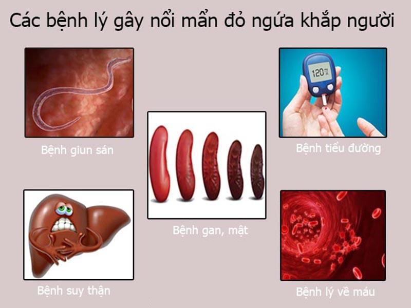 Những bệnh lý bên trong gây nổi mẩn đỏ ngứa như muỗi đốt