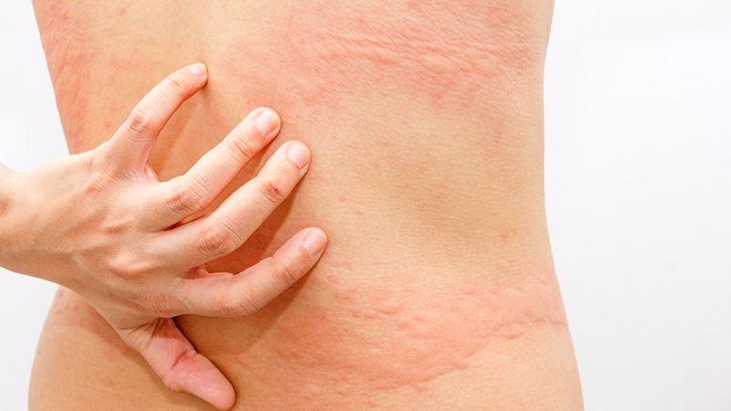 Triệu chứng của nổi mề đay ở lưng có thể dễ nhận biết bởi các nốt mẩn đỏ, sẩn, phù trên vùng da lưng
