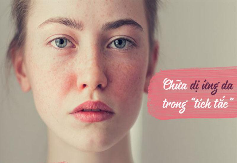 Có rất nhiều cách chữa di ứng da mặt, phổ biến là dùng mẹo dân gian, uống thuốc,...