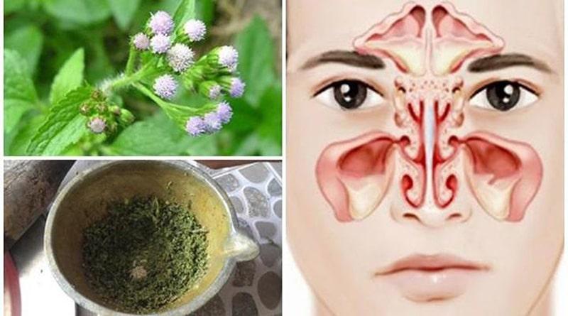 Hướng dẫn dùng hoa ngũ sắc để trị bệnh viêm xoang
