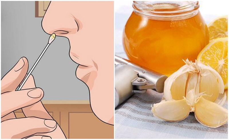 Dùng tỏi và mật ong không chỉ giúp chữa viêm xoang mà còn phục hồi niêm mạc xoang bị tổn thương