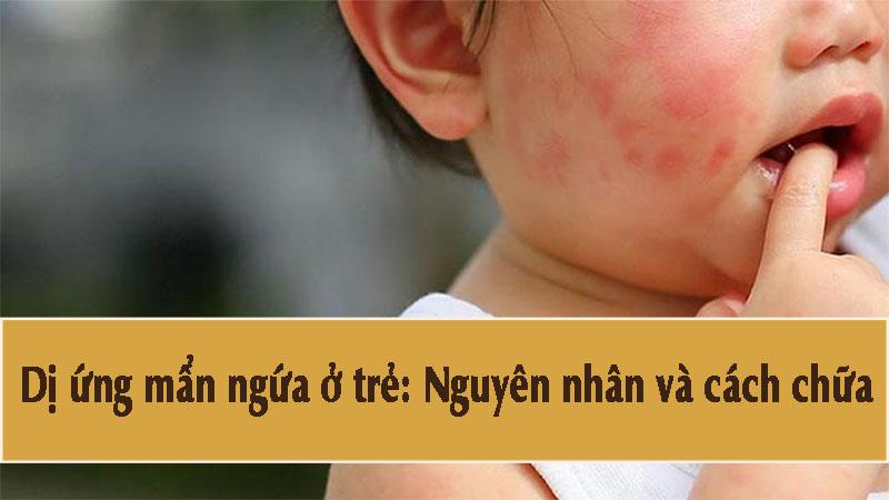 Dị ứng mẩn ngứa ở trẻ thường xảy ra do hệ thống miễn dịch kém và bị tấn công bởi các yếu tố bên trong hoặc bên ngoài cơ thể