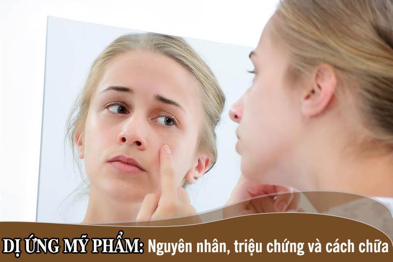 Dị ứng mỹ phẩm có thể xảy ra ở bất cứ vùng da nào nhưng phổ biến nhất là vùng da mặt