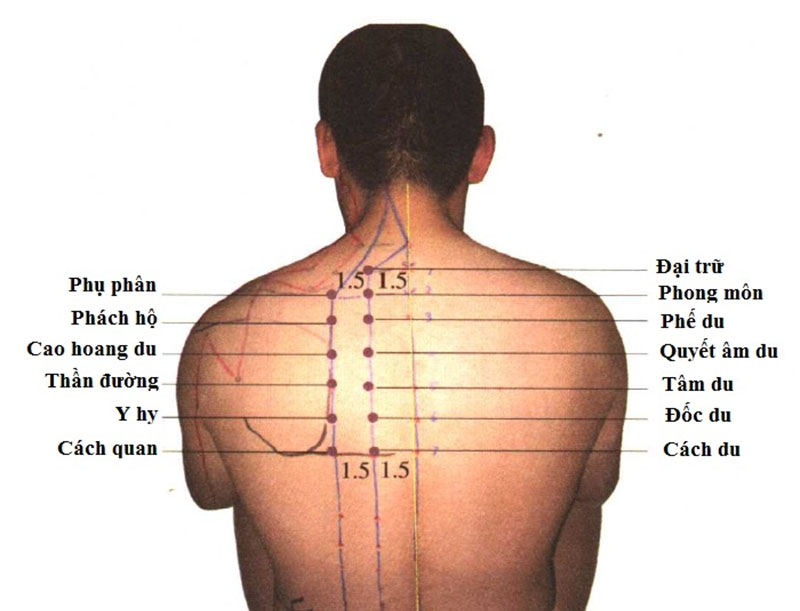 Diện chẩn chữa dị ứng mẩn ngứa bằng cách làm ấm huyệt Phong Môn, Phế Du