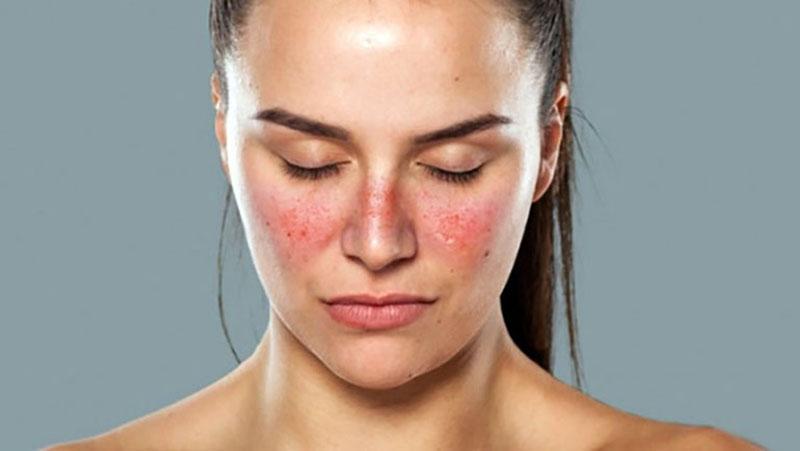 Nổi ban đỏ không ngứa ở gò má và sống mũi và triệu chứng dễ nhận biết của lupus ban đỏ