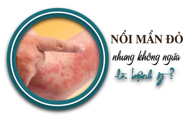 Nổi mẩn đỏ không ngứa có thể là do mề đay, dị ứng, viêm mao mạch, ung thư da, u máu…