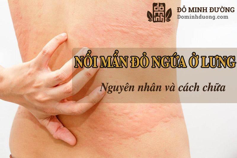 Nổi mẩn đỏ ngứa ở lưng khiến nhiều người cảm thấy vô cùng khó chịu và bức bối