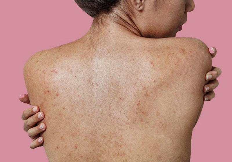 Nổi mẩn đỏ ở lưng không ngứa có thể là dấu hiệu của nhiều bệnh lý nguy hiểm