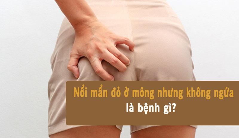 Nổi mẩn đỏ ở mông nhưng không ngứa gây ảnh hưởng xấu tới sinh hoạt hàng ngày của người bệnh