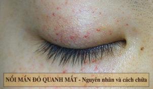 Bị nổi mẩn đỏ quanh mắt khiến rất nhiều người cảm thấy lo lắng