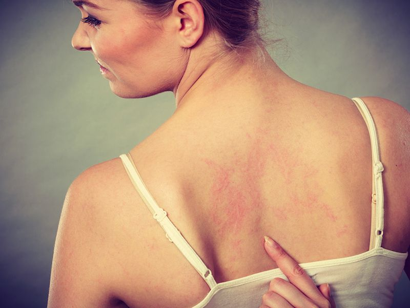 Nổi mề đay ở lưng là kết quả phản ứng của các mao mạch bên dưới da với các tác nhân gây hại