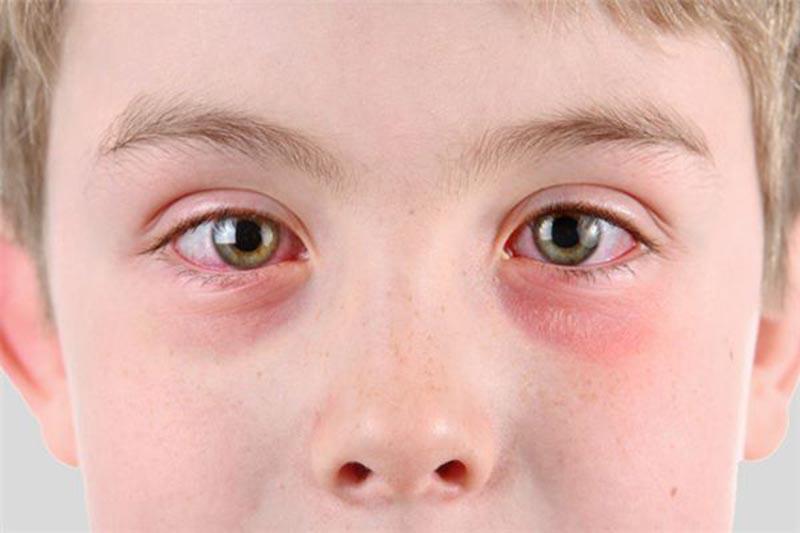 Bạn có thể bị nổi mẩn đỏ quanh mắt do bị bệnh mề đay