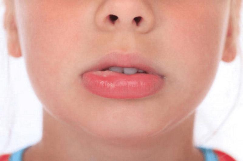 Nổi mề đay sưng môi thực chất là dấu hiệu của bệnh mề đay phù mạch