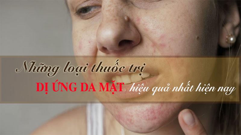 Thuốc trị dị ứng da mặt