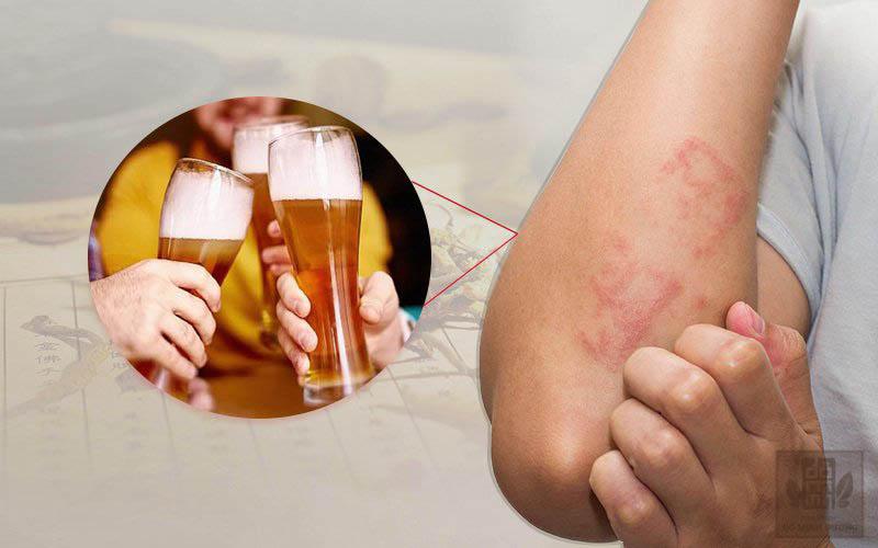 uống rượu nổi Uống rượu nổi mề đay là hiện tượng phổ biến, xảy ra với nhiều ngườimề đay