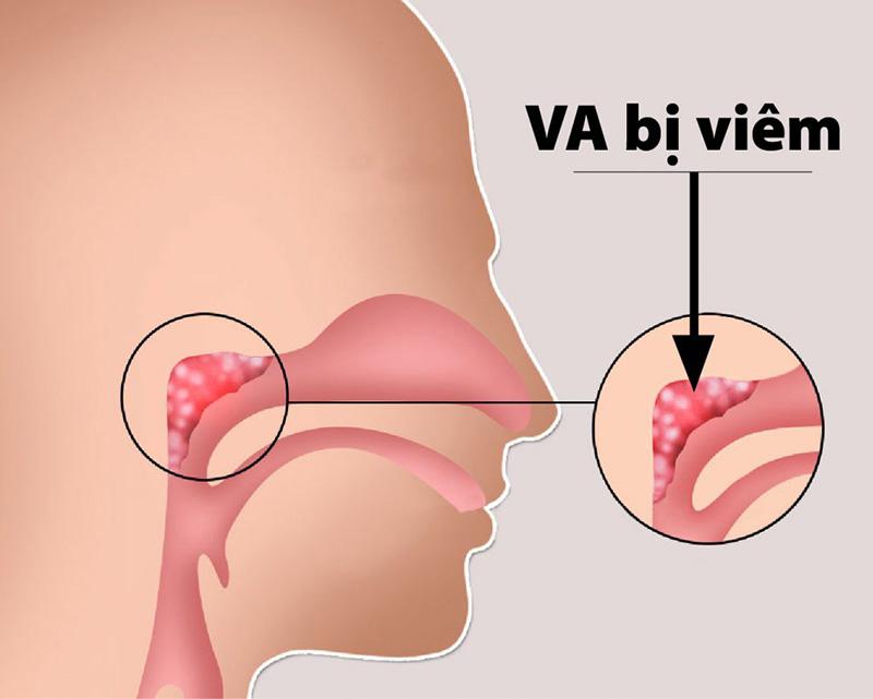 VA bị viêm nhiễm gây ra các triệu chứng tại mũi họng và toàn thân