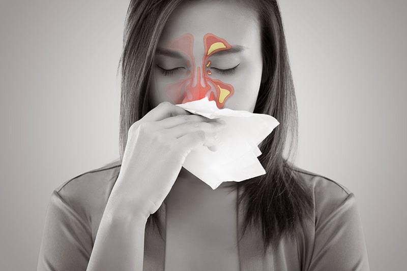Chảy dịch mũi, đau hốc xoang là dấu hiệu điển hình của bệnh