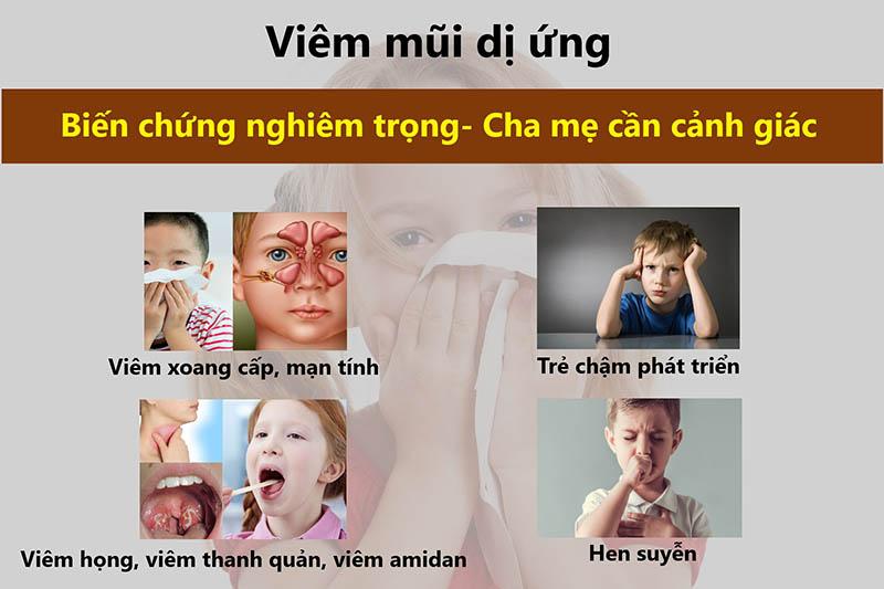 Viêm mũi dị ứng kéo dài có thể làm xuất hiện một số biến chứng xấu