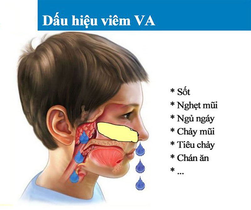 Các triệu chứng viêm va cấp làm ảnh hưởng đến sức khỏe và tinh thần trẻ