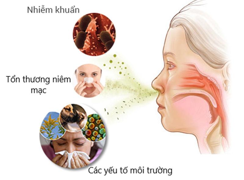 Có 4 nguyên nhân chính gây ra viêm mũi mủ ở trẻ em