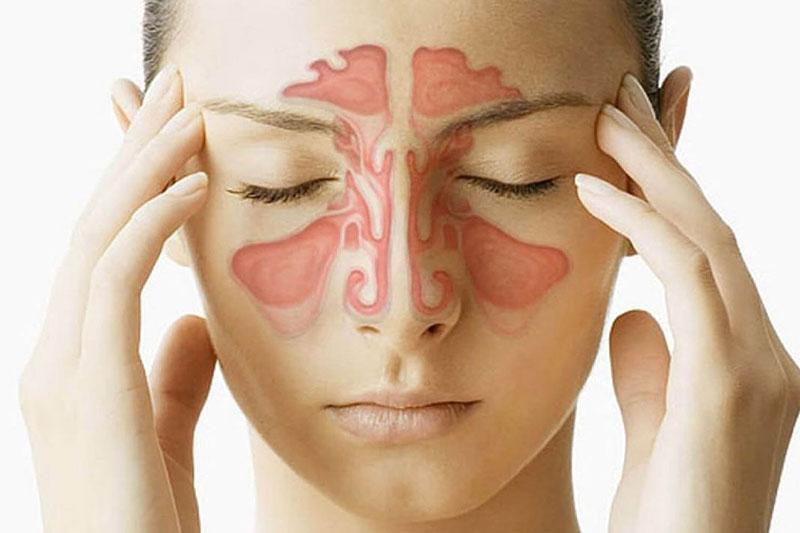 Sổ mũi lâu ngày không được điều trị có thể dẫn đến viêm xoang