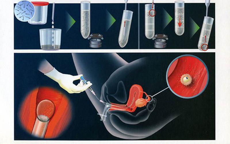 Thụ tinh nhân tạo dùng tinh trùng của nam giới bơm vào tử cung của người nữ để tăng khả năng đậu thai