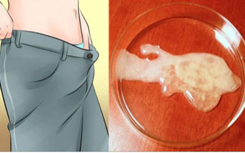 Tinh dịch bất thường là triệu chứng vô sinh phổ biến
