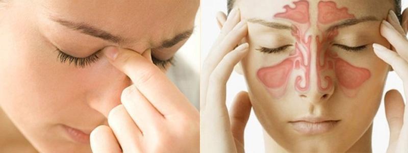 Biến chứng nặng nhất của viêm mũi dị ứng là viêm xoang