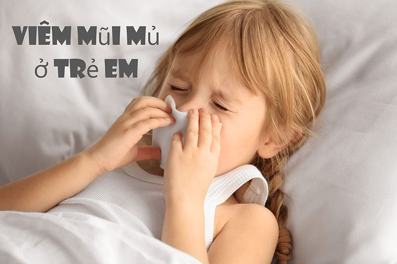 Mẹ cần cảnh giác với bệnh viêm mũi mủ ở trẻ em
