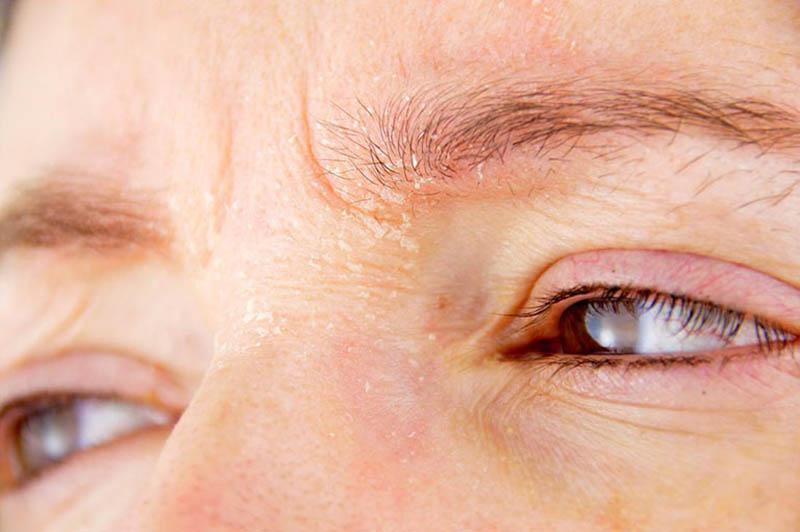 Bệnh viêm da tiết bã nhờn Eczema có thể là nguyên nhân gây ngứa chân mày