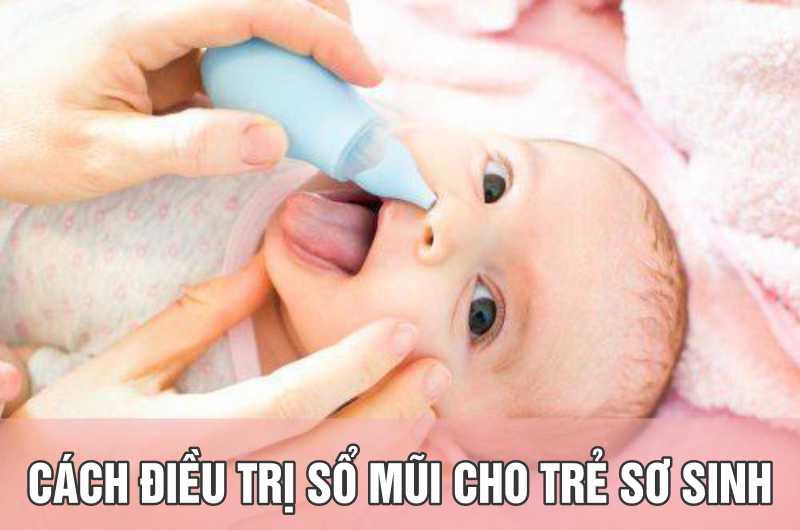 Những cách điều trị sổ mũi cho trẻ sơ sinh hiệu quả