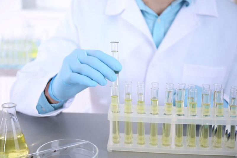 Xét nghiệm nước tiểu giúp phát hiện tình trạng bất thường của tinh trùng