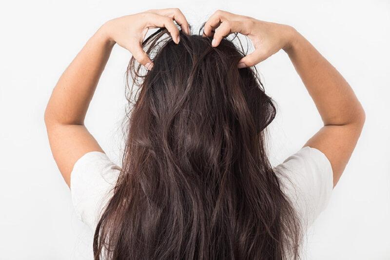 Da đầu ngứa có vảy trắng là triệu chứng của nhiều bệnh lý