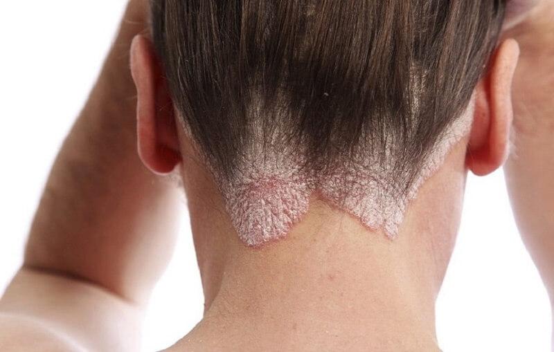 Người mắc á sừng có triệu chứng điển hình như da đầu khô ngứa, có vảy trắng