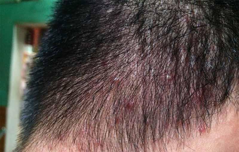 Viêm da dị ứng có biểu hiện là các mụn đỏ có kích thước nhỏ đi kèm với cảm giác ngứa rát