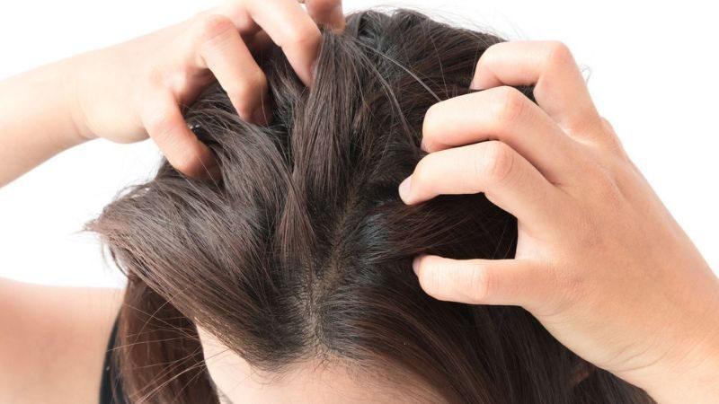 Ngứa da đầu có thể là biểu hiện của bệnh vảy nến
